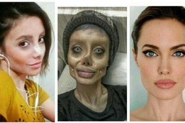 Jolie super-fan has 50 surgeries to look like her