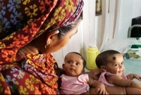 Conjoined-twins-Tofa-Tahura-separated